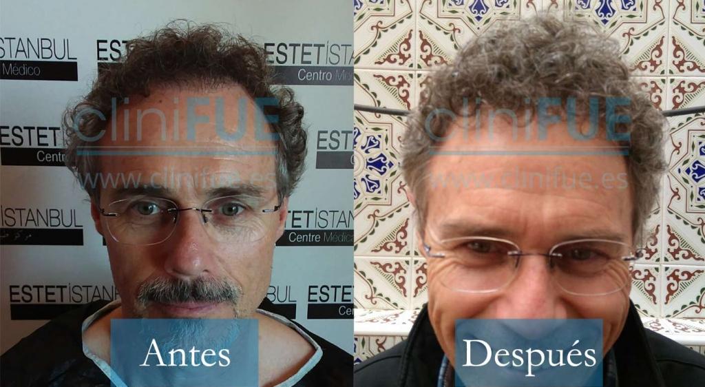 Tony 48 años Murcia 3800UF injerto de pelo en Turquia