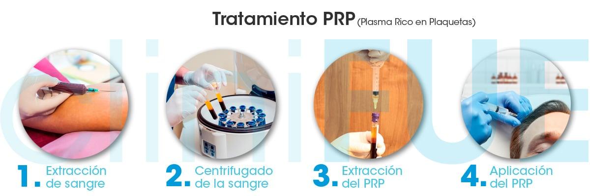 Tratamiento Plasma Rico en Plaquetas