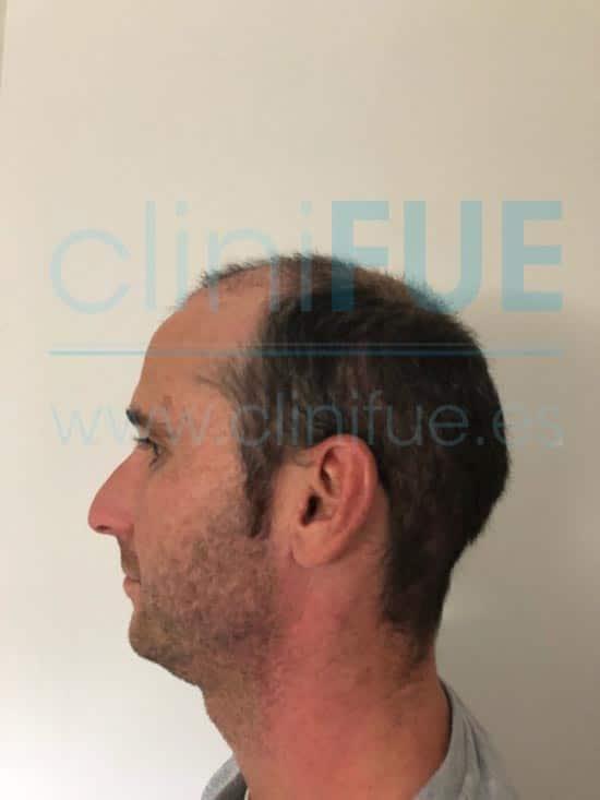 Antonio 39 años Murcia trasplante capilar turquia 1 mes
