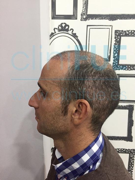 Antonio 39 años Murcia trasplante capilar turquia 15 dias
