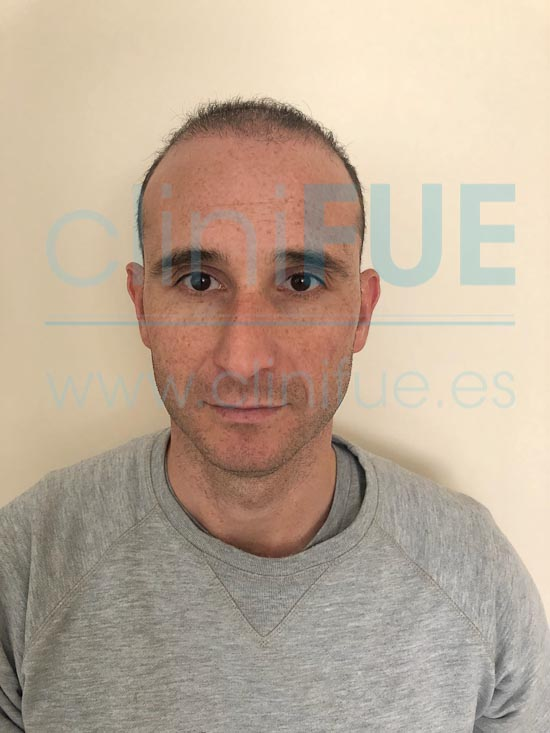 Antonio 39 años Murcia trasplante capilar turquia 2 meses