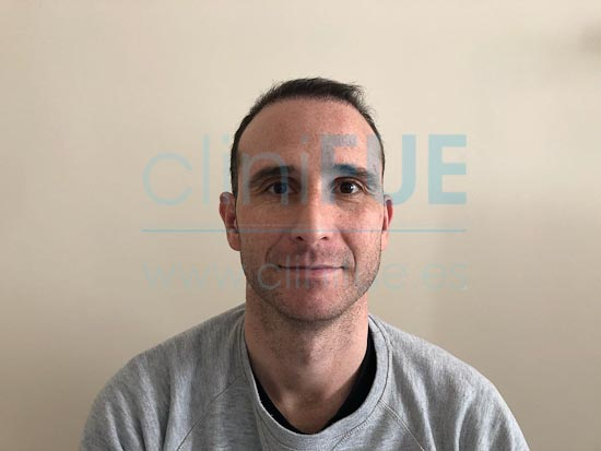 Antonio 39 años Murcia trasplante capilar turquia 3 meses
