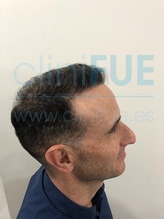 Antonio 39 años Murcia trasplante capilar turquia 6 meses