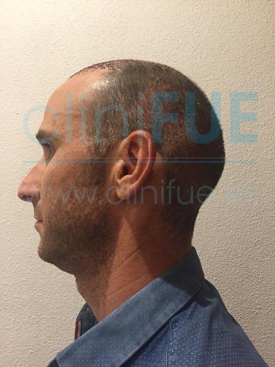 Antonio 39 años Murcia trasplante capilar turquia 7 dias