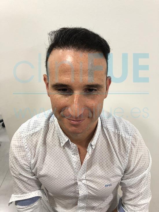 Antonio 39 años Murcia trasplante capilar turquia 9 meses