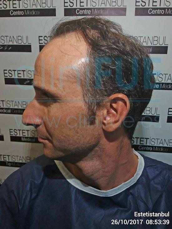 Antonio 39 años Murcia trasplante capilar turquia Antes