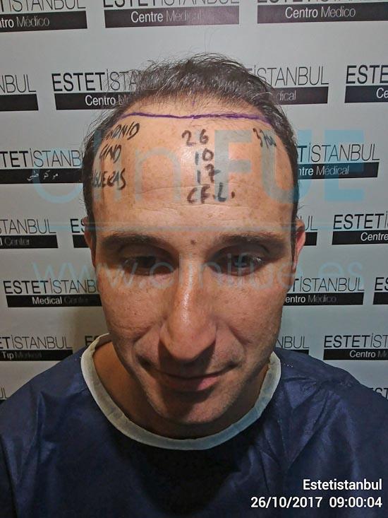Antonio 39 años Murcia trasplante capilar turquia Dia Operacion