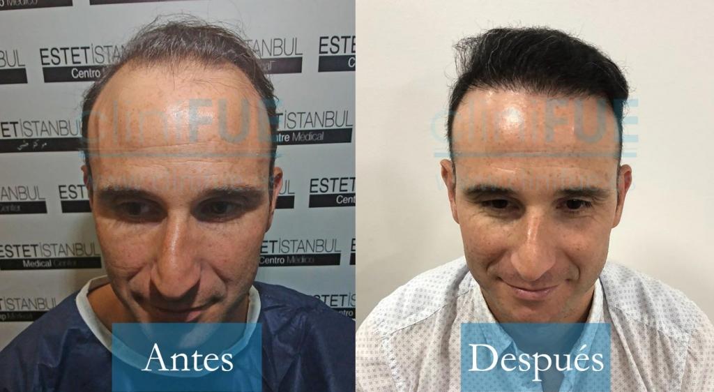 Antonio 39 Murcia_ antes y despues trasplante capilar cliniFUE
