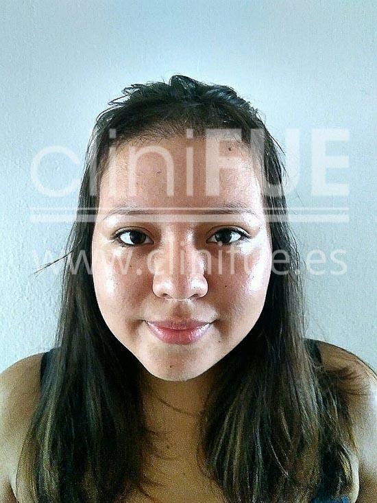Diandra 22 Barcelona trasplante capilar femenino 4 meses