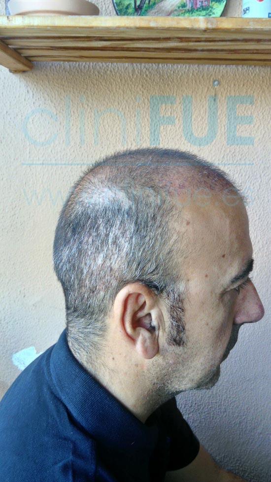 Jose Javier 47 Sevilla trasplante capilar 1 mes