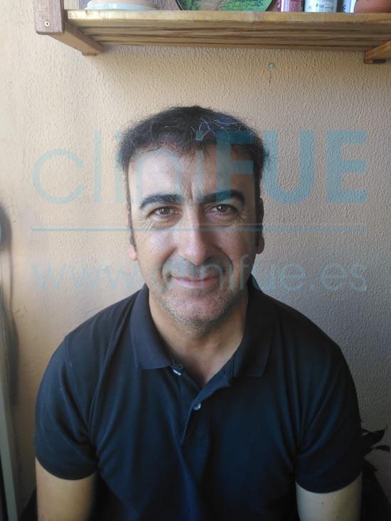 Jose Javier 47 Sevilla trasplante capilar 12 meses