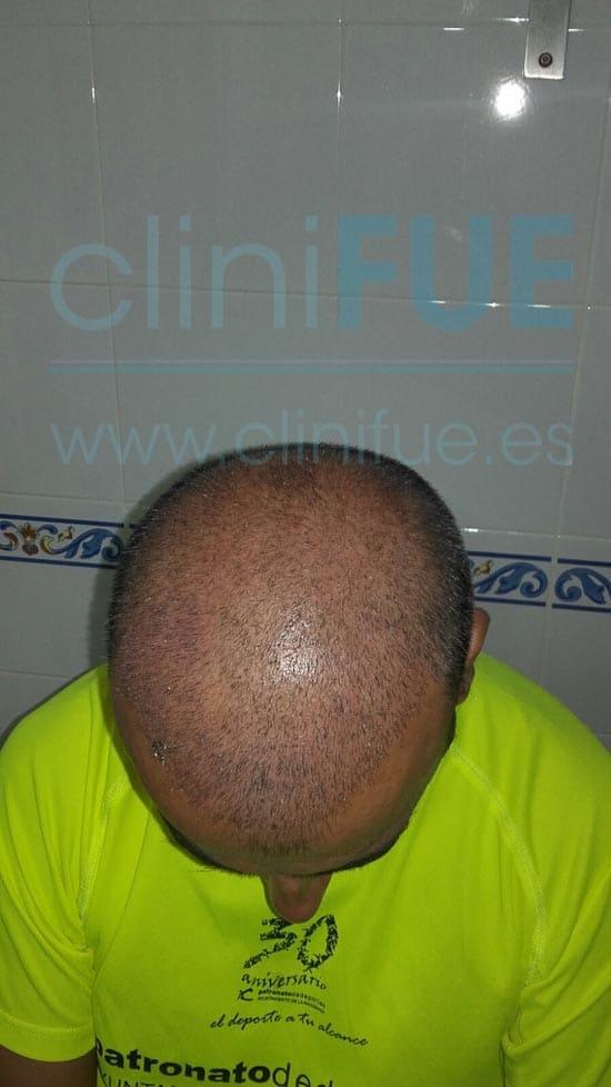 Jose Javier 47 Sevilla trasplante capilar 15 dias