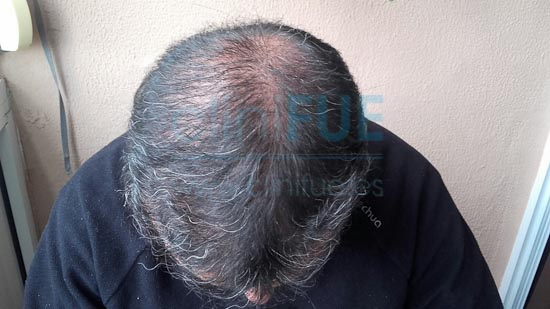 Jose Javier 47 Sevilla trasplante capilar 6 meses