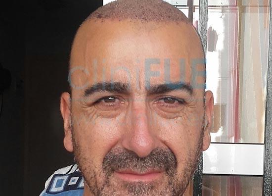 Jose Javier 47 Sevilla trasplante capilar 7 dias