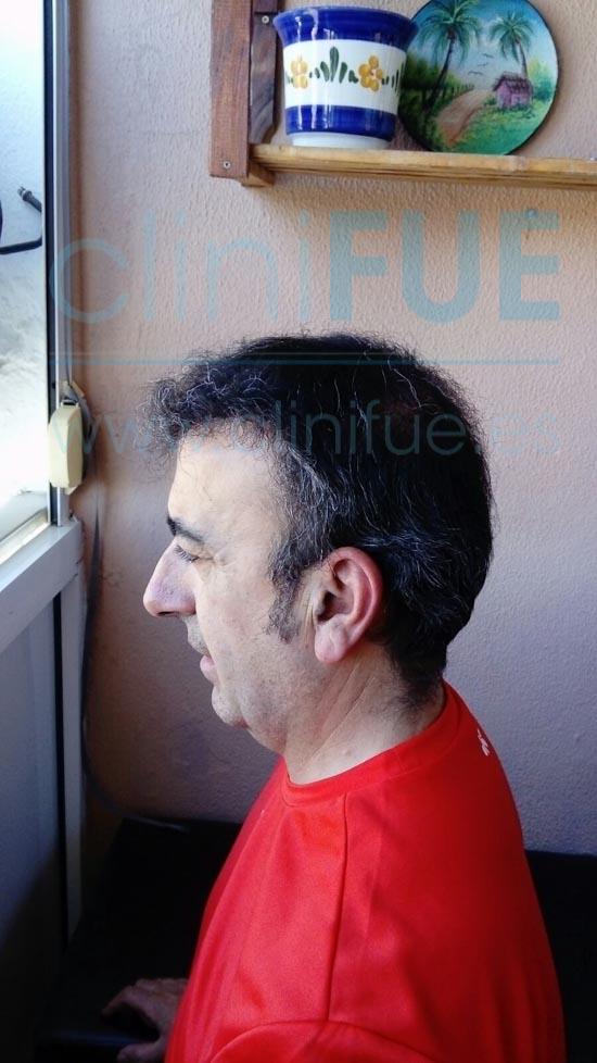 Jose Javier 47 Sevilla trasplante capilar 9 meses
