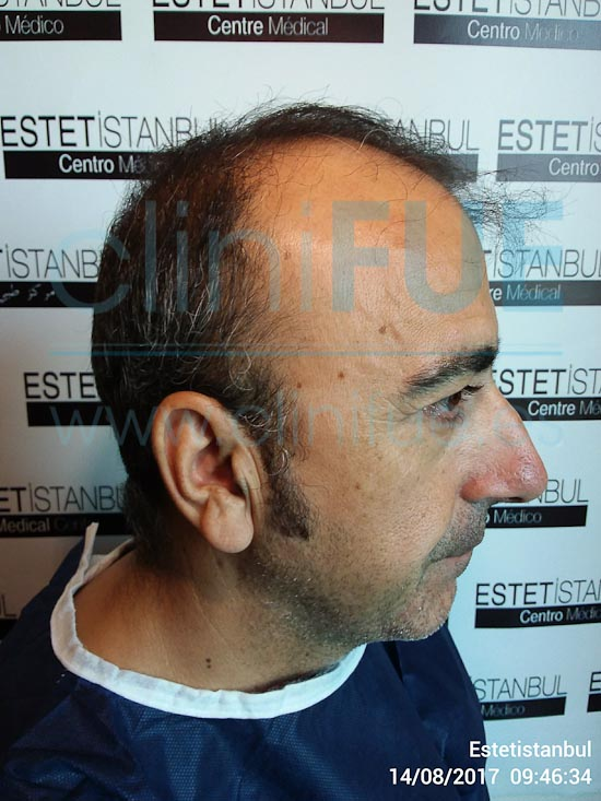 Jose Javier 47 años Sevilla trasplante capilar turquia Antes