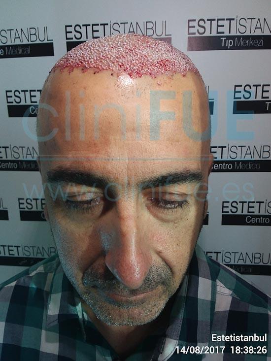 Jose Javier 47 Sevilla trasplante capilar Dia Operacion