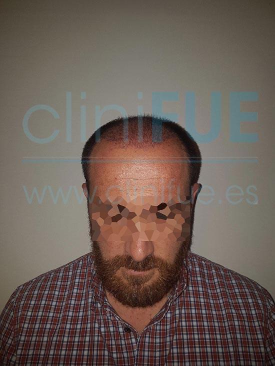 Juan Antonio 41 años Malaga injerto capilar estambul 1 mes
