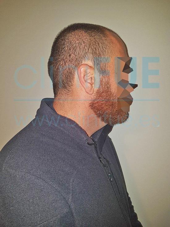 Juan Antonio 41 años Malaga injerto capilar estambul 15 dias