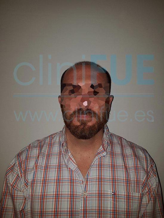 Juan Antonio 41 años Malaga injerto capilar estambul 3 meses
