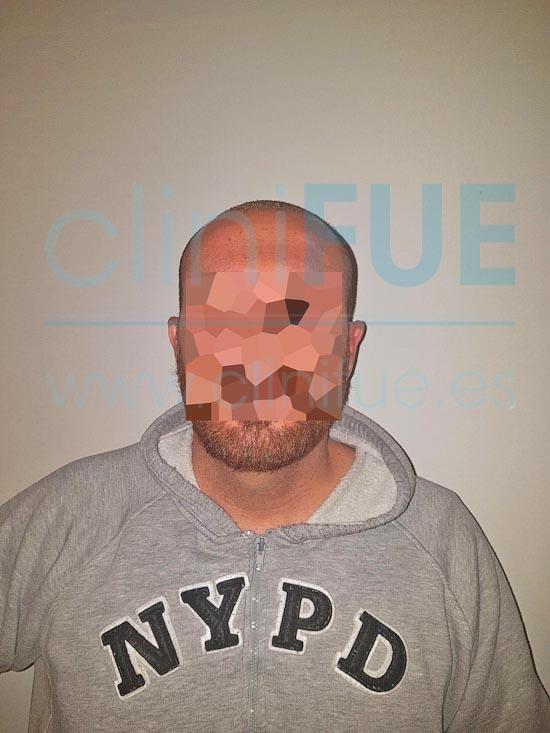 Juan Antonio 41 años Malaga injerto capilar estambul 7 dias