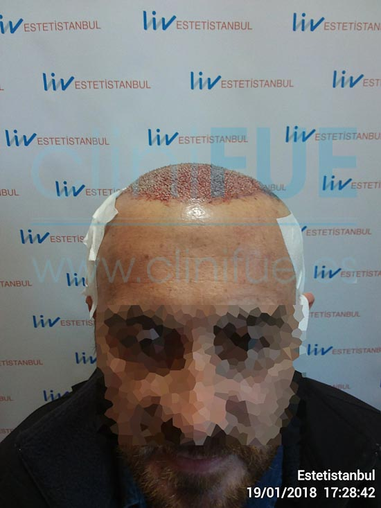 Juan Antonio 41 años Malaga injerto capilar estambul Dia Operacion