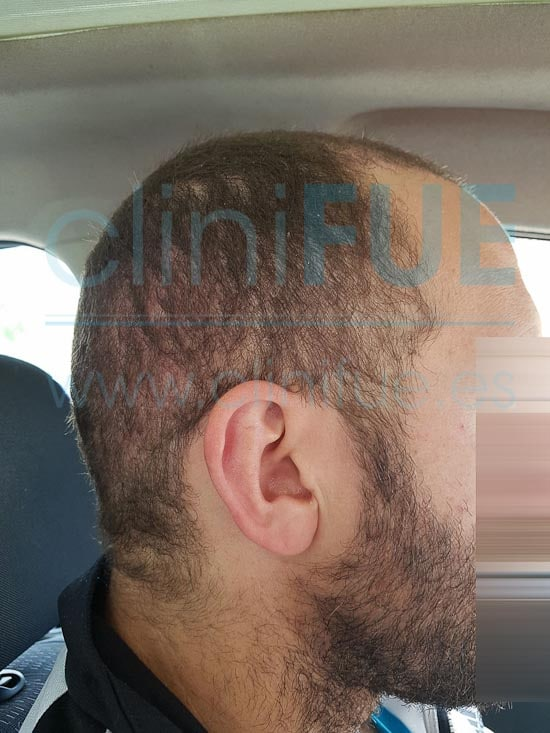 David 32 años Madrid injerto capilar turquia 1 mes