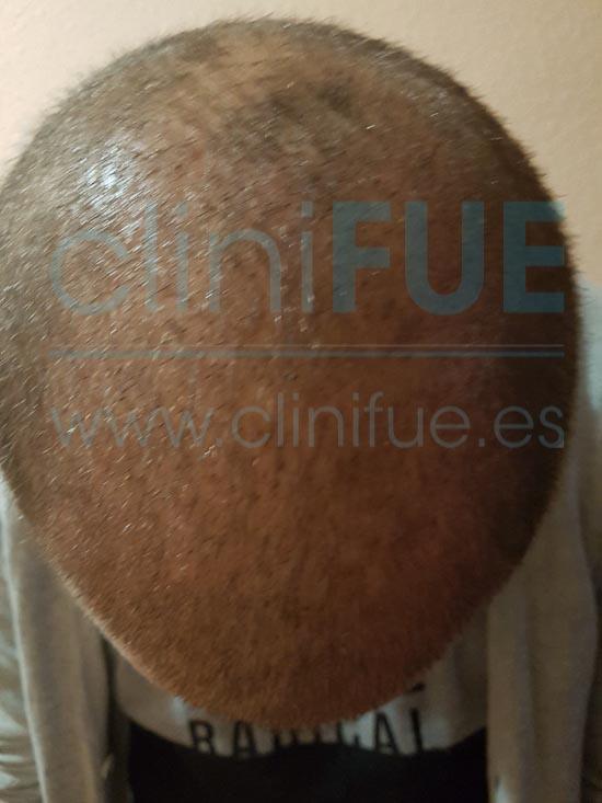 David 32 años Madrid injerto capilar turquia 15 dias