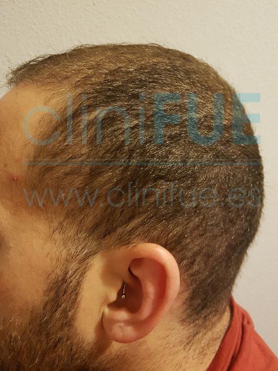 David 32 años Madrid injerto capilar turquia 3 meses