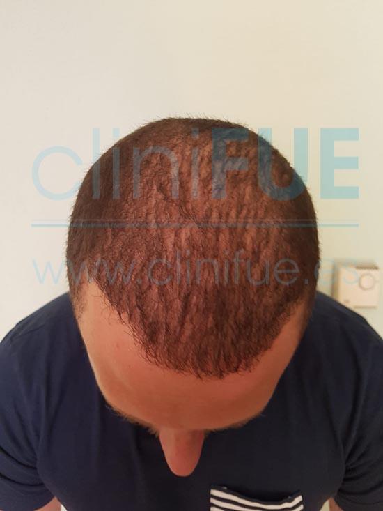 David 32 años Madrid injerto capilar turquia 6 meses