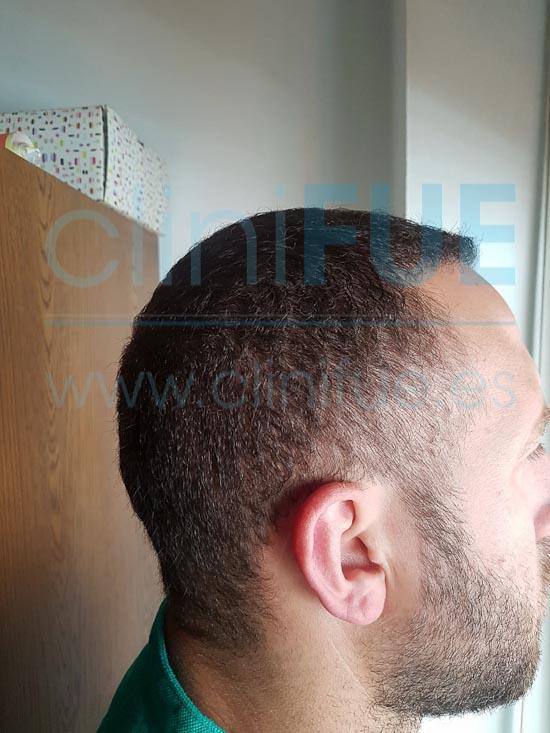 David 32 años Madrid injerto capilar turquia 9 meses