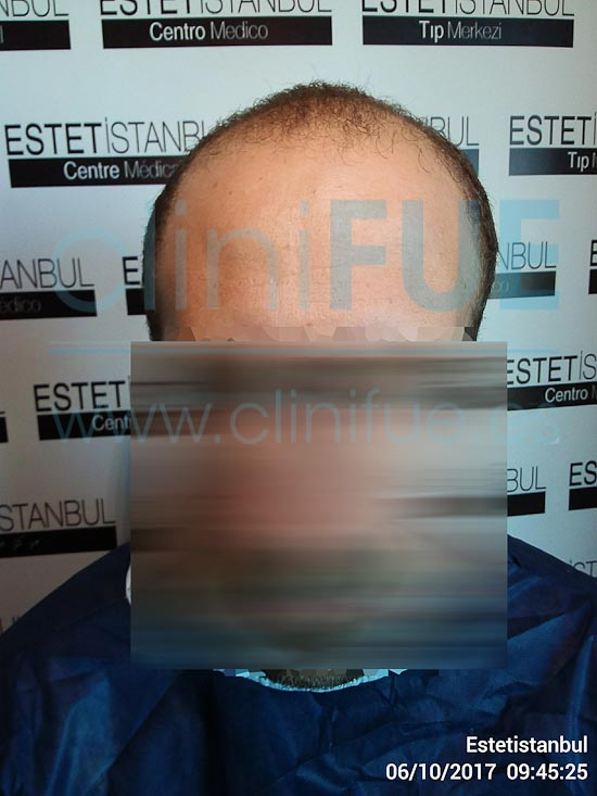 David 32 años Madrid injerto capilar turquia Antes