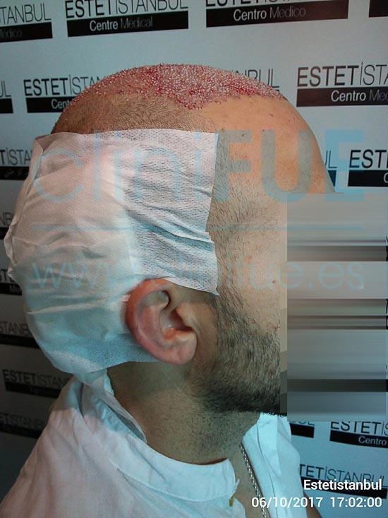 David 32 años Madrid injerto capilar turquia Dia Operacion