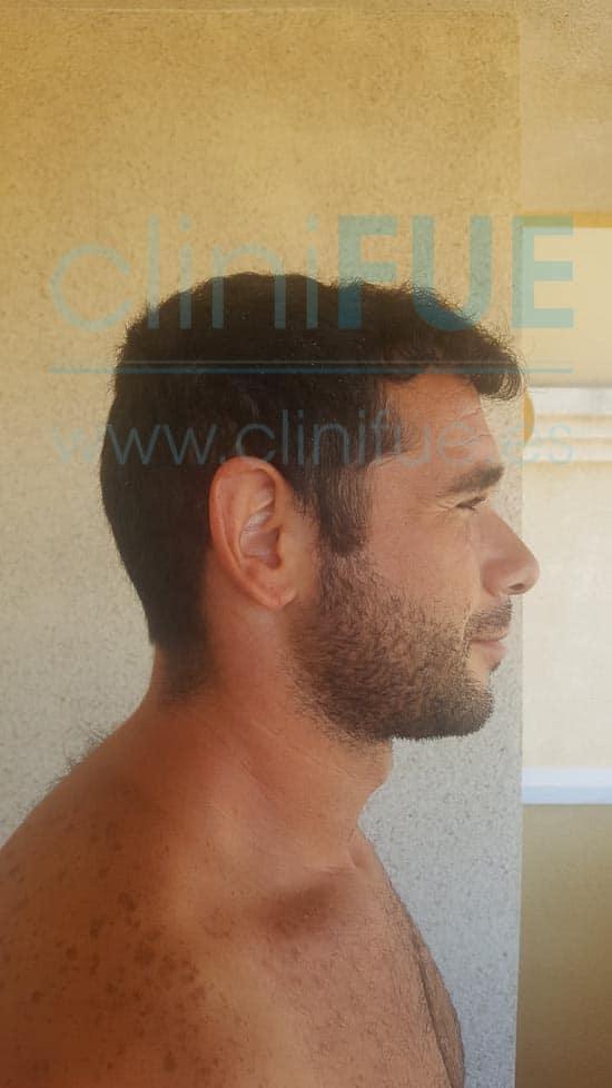 Jose 30 años Murcia trasplante capilar turquia 12 meses