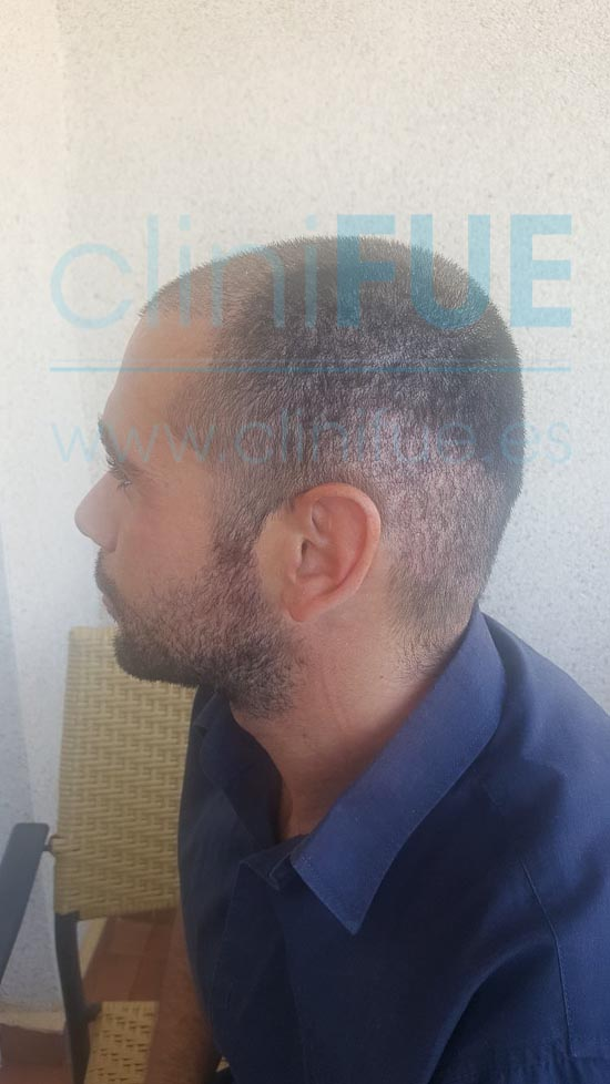 Jose 30 años Murcia trasplante capilar turquia 15 dias
