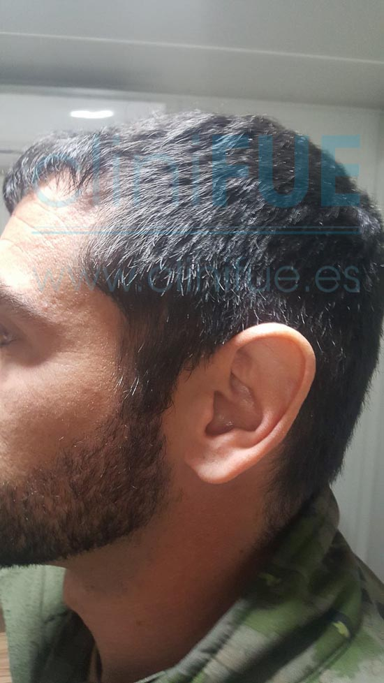 Jose 30 años Murcia trasplante capilar turquia 6 meses