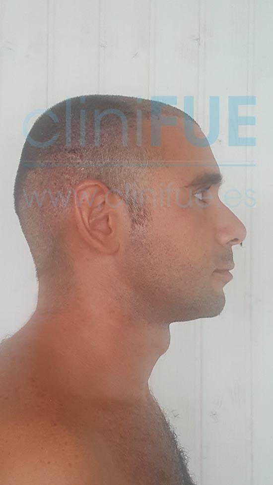 Jose 30 años Murcia trasplante capilar turquia 7 dias