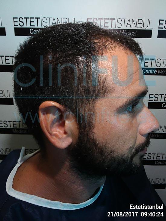 Jose 30 años Murcia trasplante capilar turquia Antes