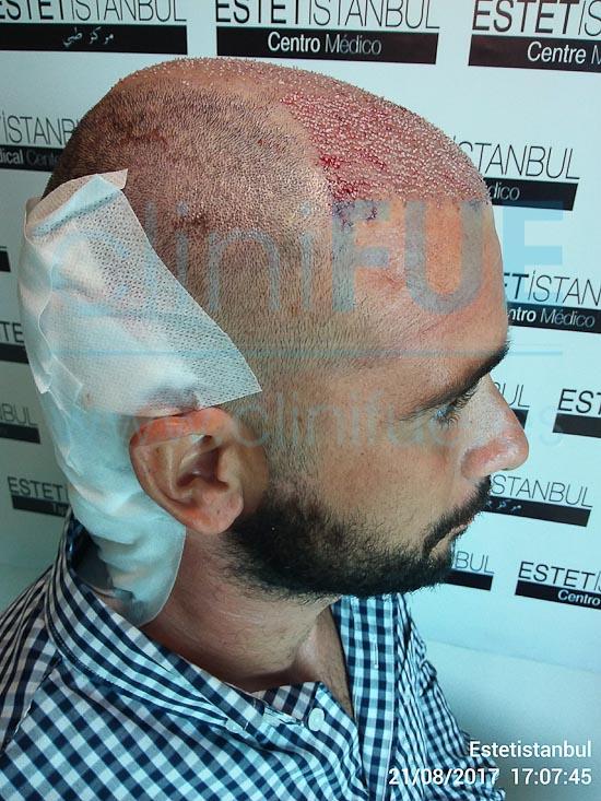 Jose 30 años Murcia trasplante capilar turquia Dia Operacion