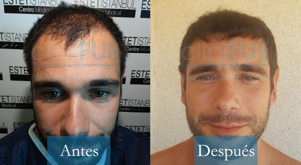 Jose 30 Murcia_ antes y despues trasplante capilar cliniFUE