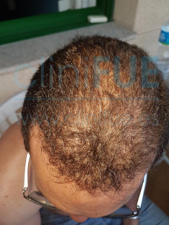 Juan Jose 45 Barcelona trasplante capilar turquia 12 meses