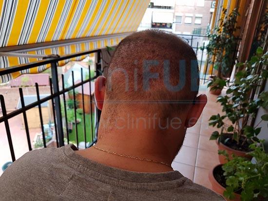 Juan Jose 45 Barcelona trasplante capilar turquia 15 días