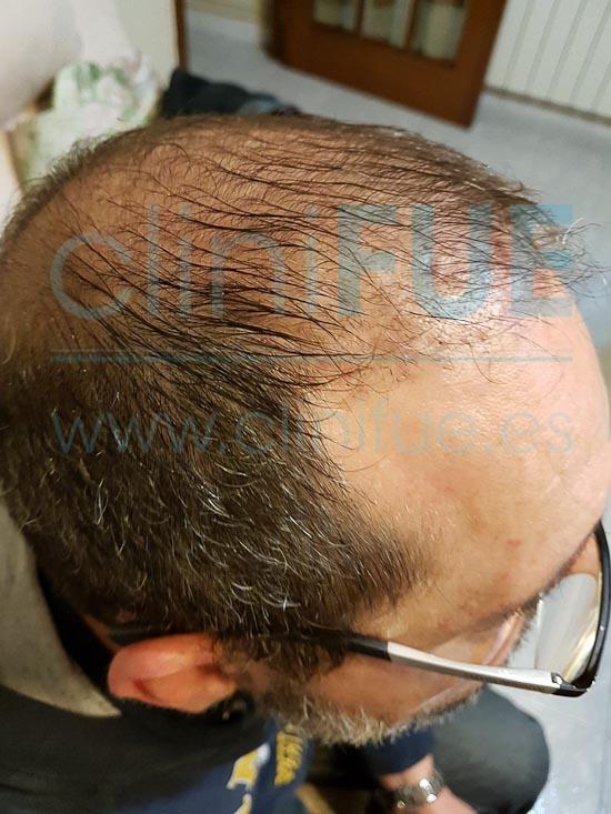 Juan Jose 45 Barcelona trasplante capilar turquia 3 meses