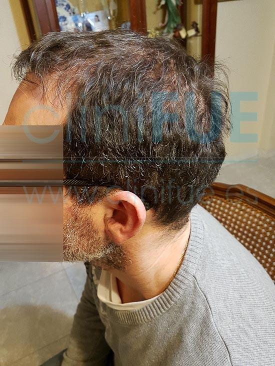 Juan Jose 45 Barcelona trasplante capilar turquia 6 meses