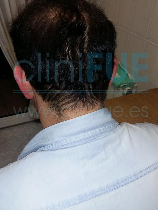 Juan Jose 45 Barcelona trasplante capilar turquia 9 meses