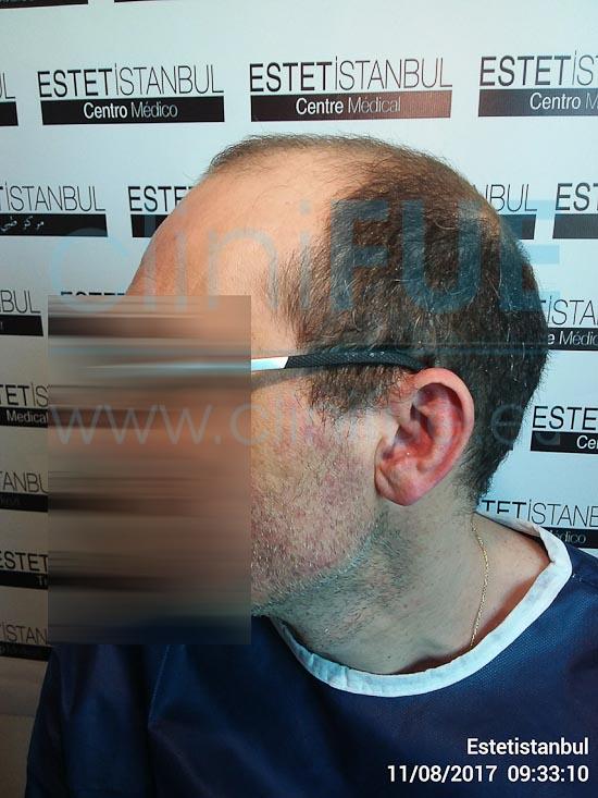 Juan Jose 45 Barcelona trasplante capilar turquia Antes
