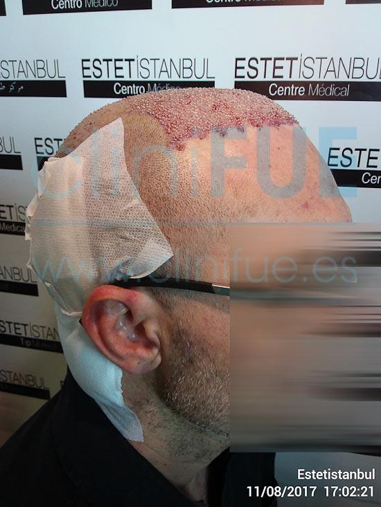 Juan Jose 45 Barcelona trasplante capilar turquia Dia Operacion