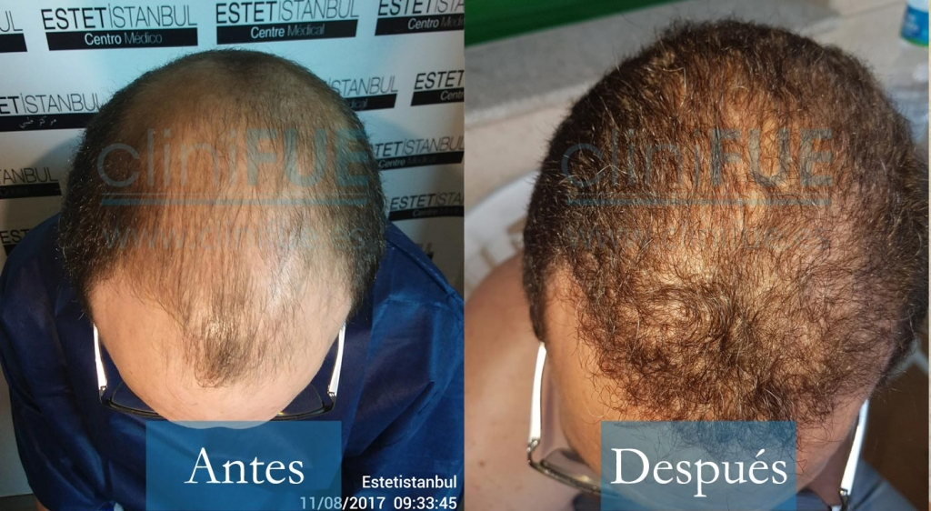 Juan Jose 45 Barcelona_ antes y despues trasplante capilar cliniFUE