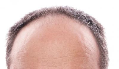 combatir la alopecia trasplante capilar