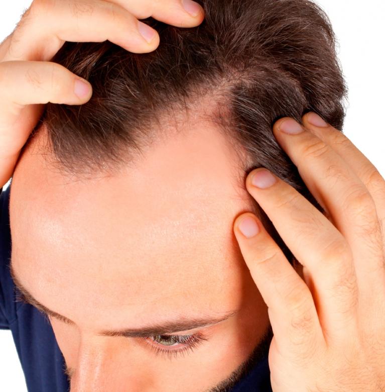 solución la caída del pelo